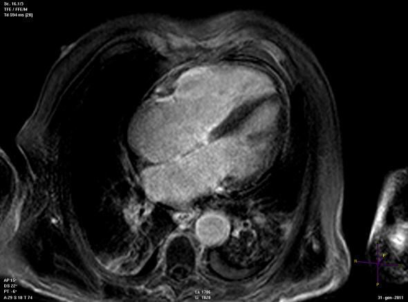Idiopathic dilated cardiomyopathy.