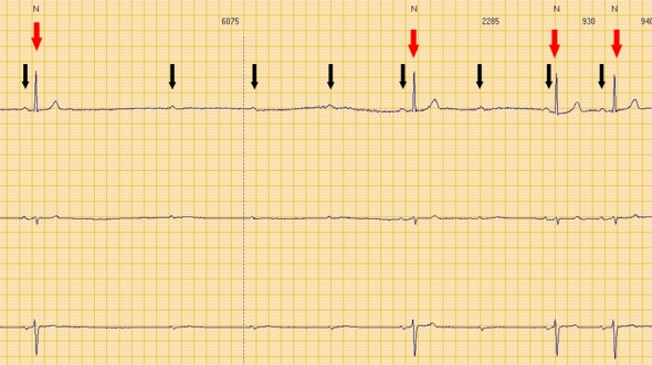 Red arrows: QRS (ventricular electrical activity). Black arrows: P waves (atrial electrical activity).  Consecutive P waves care not followed by QRS, leading to a transient asystolic pause.