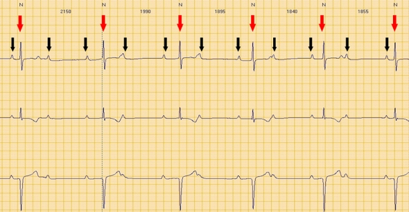 Red arrows: QRS (ventricular electrical activity). Black arrows: P waves (atrial electrical activity). Atrial and ventricular activity is completely dissociated.